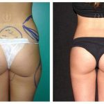 Sculptural Liposuction