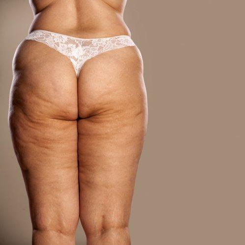 Lipedema Treatment with Liposuction - Dr  Andrés Freschi - Buenos Aires