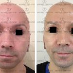 Lipotransferencia Facial
