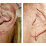 Cleft Earlobe Correction