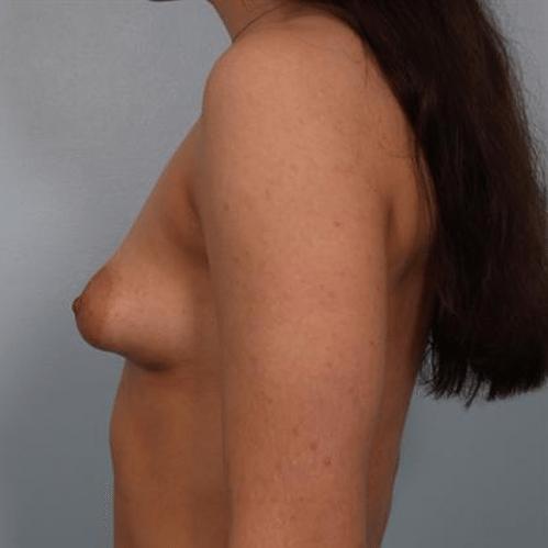 Cirugia de Senos: Precio exacto, Fotos, Video y especialistas