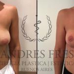 Breast Lift