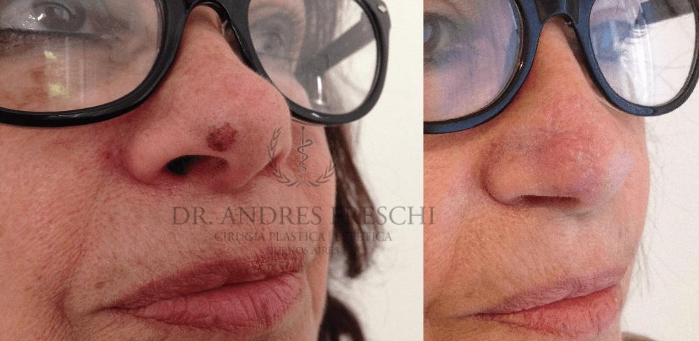 Skin Moles Surgery